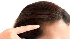 استرس زیاد باعث ریزش مو می شود + جزئیات