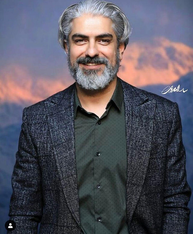 تغییر چهره مهدی پاکدل همه را شوکه کرد!