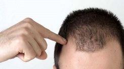 تشخیص ریزش مو